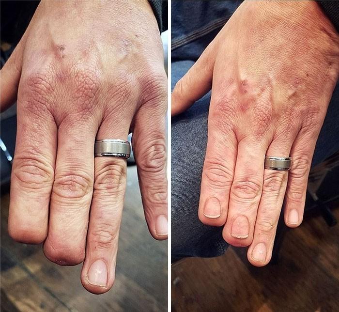 30 Osób Którym Kreatywne Tatuaże Pomogły Ukryć Blizny I